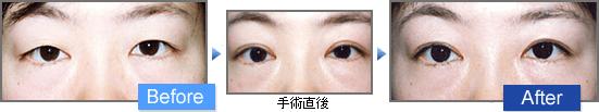 上眼瞼切開(じょうがんけんせっかい)の二重前後イメージ