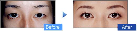 マイクロカット法(埋没法+脱脂)の二重前後イメージ