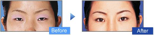 ミニマムカット法(小切開法)の二重前後イメージ