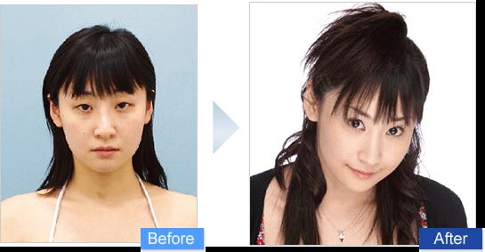 眼瞼下垂(がんけんかすい)の二重前後イメージ