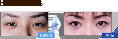 目の幅を広げる